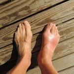足が腫れている